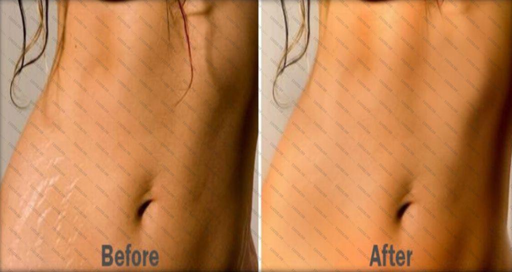 درمان ترکهای پوست حاصل از کشیدگی (استریا یا استرچ مارک)