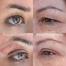 سفت شدن پوست در پلاسما: نحوه عملکرد ، کارایی و موارد دیگر